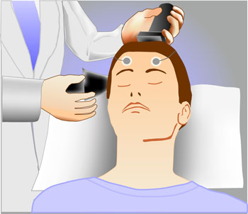 an introduction to the treatment of depression with electroconvulsive therapy Electroconvulsive therapy, also known as ect or electroshock therapy, may be a viable treatment program for consenting adult patients with severe depression who are not responding to anti-depressant medications.